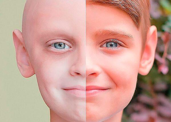 Vasario 4-oji – Pasaulinė kovos su vėžiu diena