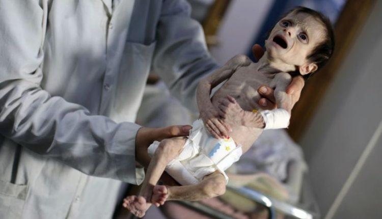 Tragiški vaizdai iš Sirijos: režimas abejingas net badaujantiems kūdikiams